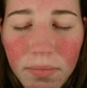 rosacea-3-dr-jerry-tan-e1417629091336-395x400