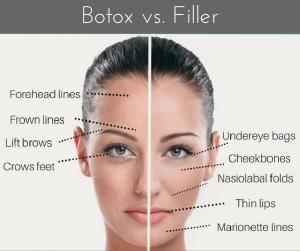 Botox-vs.-Filler