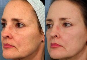 cutera ipl intense pulsed light at lowe dermatology